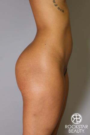Brazilian Butt Lift: Patient 8 - Before Image 2
