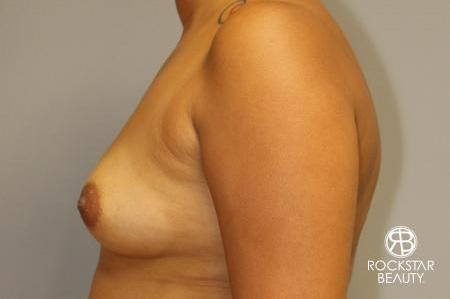 Breast Augmentation: Patient 9 - Before and After Image 4