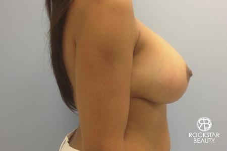 Combo Procedures - Breast: Patient 1 - After Image 2
