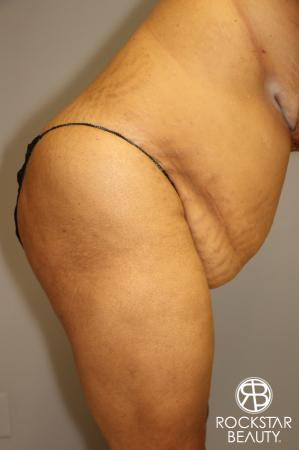 Tummy Tuck: Patient 3 - Before and After Image 4