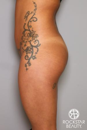 Brazilian Butt Lift: Patient 9 - Before Image 3