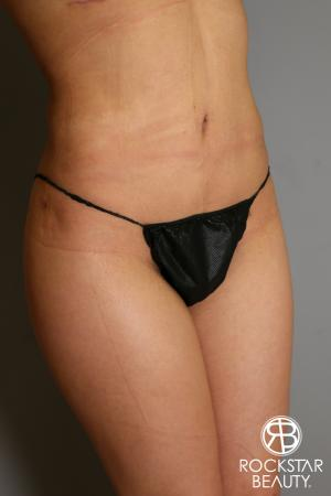 Liposuction: Patient 14 - After Image 3