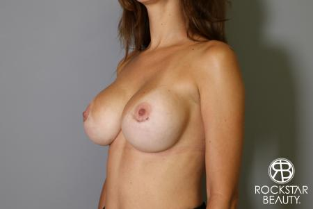 Breast Implant Exchange: Patient 7 - After Image 3