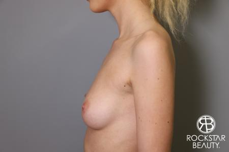 Breast Augmentation: Patient 1 - Before and After Image 5