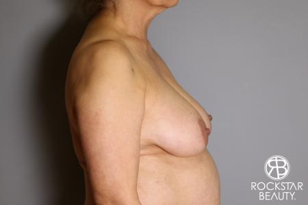 Mastopexy: Patient 3 - Before and After Image 5