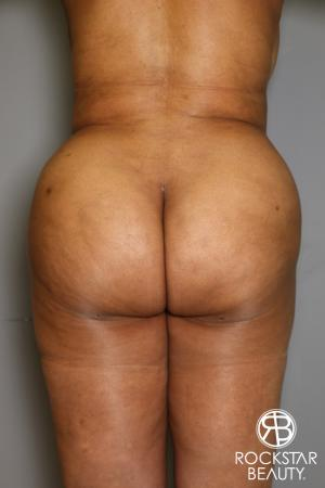 Brazilian Butt Lift: Patient 11 - After Image 1