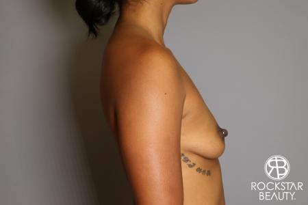 Breast Augmentation: Patient 14 - Before Image 4