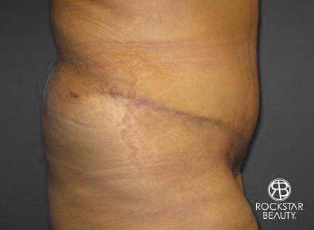 Tummy Tuck: Patient 8 - After 2
