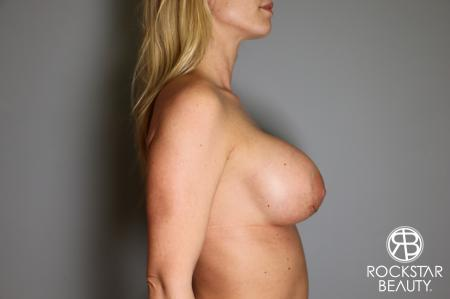 Breast Implant Revised: Patient 1 - After Image 3