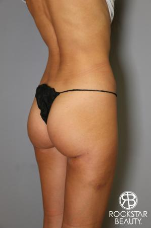 Liposuction: Patient 15 - After Image 3