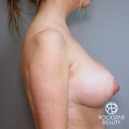 Mastopexy: Patient 1 - After 3