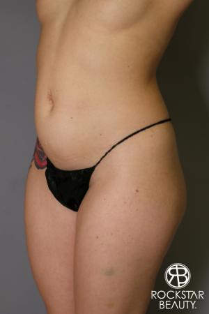 Brazilian Butt Lift: Patient 16 - Before and After Image 3