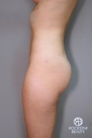 Liposuction: Patient 9 - After Image 3