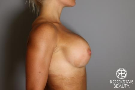 Breast Implant Exchange: Patient 9 - After Image 3