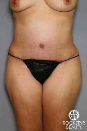 Tummy Tuck: Patient 13 - After Image 1