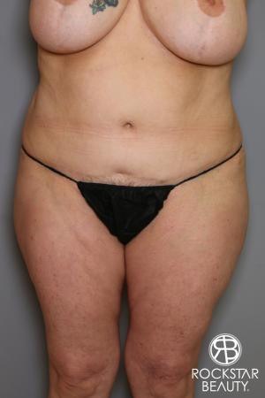 Tummy Tuck: Patient 12 - After Image 1