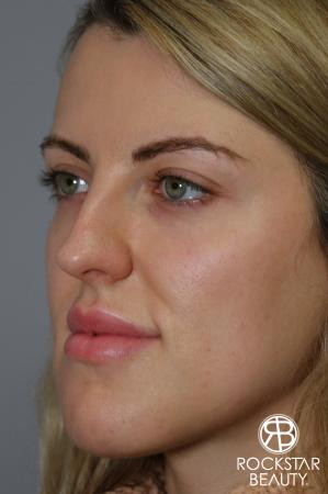 Rhinoplasty: Patient 1 - Before Image 4