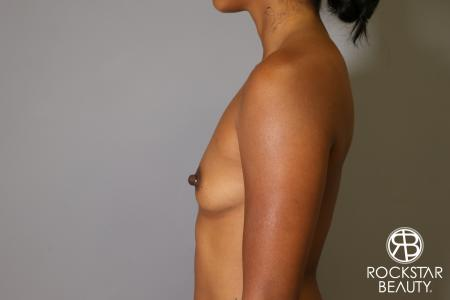 Breast Augmentation: Patient 14 - Before and After Image 5