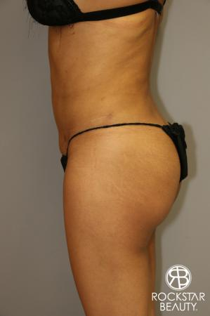 Liposuction: Patient 3 - After Image 5