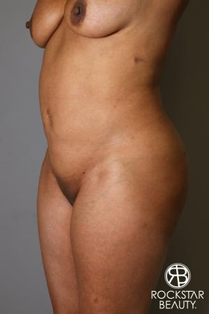 Brazilian Butt Lift: Patient 11 - Before Image 3