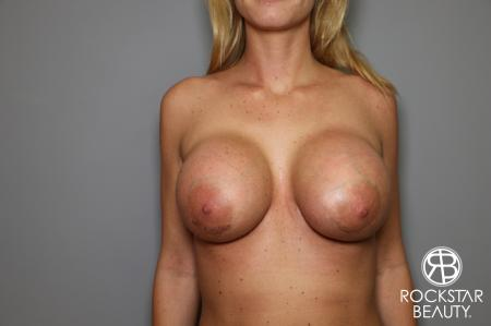 Breast Implant Revised: Patient 1 - After Image 1