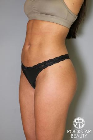 Brazilian Butt Lift: Patient 5 - After Image 4