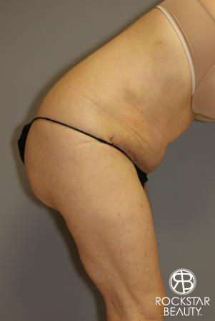 Tummy Tuck: Patient 12 - After Image 5
