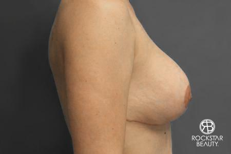 Breast Implant Exchange: Patient 2 - After Image 2