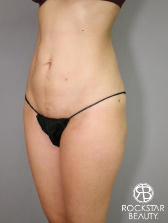 Liposuction: Patient 5 - After Image 2