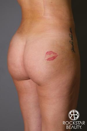 Brazilian Butt Lift: Patient 17 - After Image 2