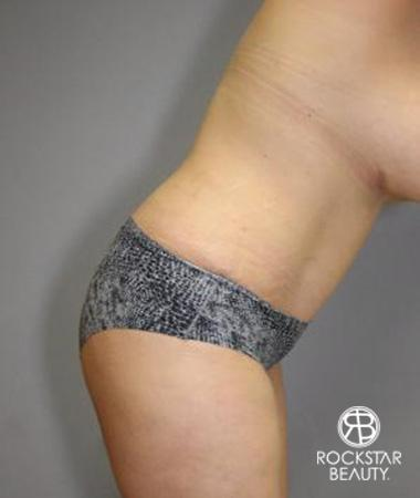 Tummy Tuck: Patient 10 - After Image 4