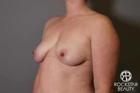 Breast Augmentation: Patient 11 - Before Image 4