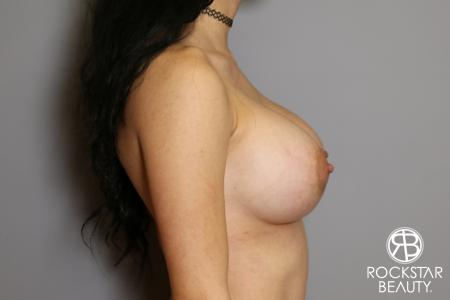 Breast Implant Exchange: Patient 5 - After Image 3
