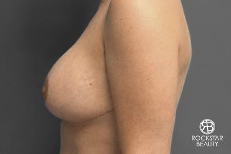Breast Implant Exchange: Patient 2 - After Image 3