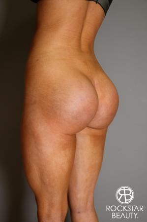 Butt Augmentation: Patient 3 - After Image 5