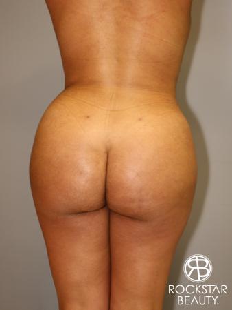 Brazilian Butt Lift: Patient 1 - After Image