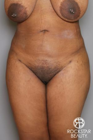 Brazilian Butt Lift: Patient 13 - After Image 4
