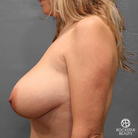 Mastopexy: Patient 1 - Before and After Image 5