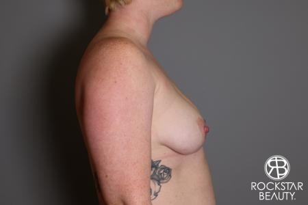 Breast Augmentation: Patient 11 - Before Image 3