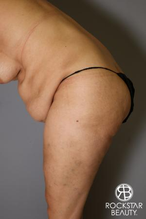 Tummy Tuck: Patient 13 - Before Image 4