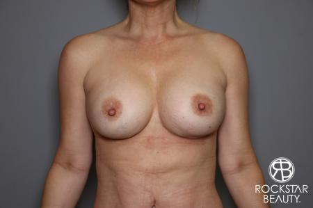 Breast Implant Exchange: Patient 6 - After Image 1