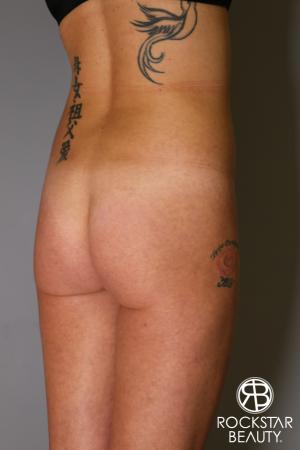 Brazilian Butt Lift: Patient 6 - Before Image 2