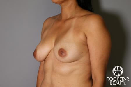 Breast Augmentation: Patient 13 - Before Image 3