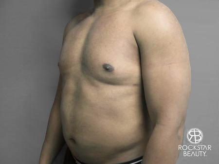 Liposuction: Patient 10 - After Image 4
