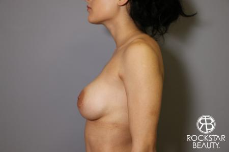 Breast Implant Exchange: Patient 5 - Before and After Image 5