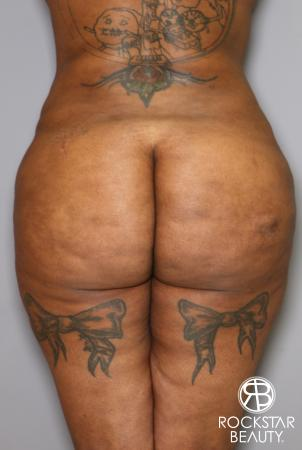 Brazilian Butt Lift: Patient 15 - Before Image 1