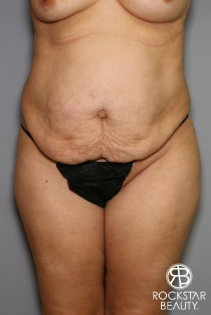 Tummy Tuck: Patient 13 - Before Image 1