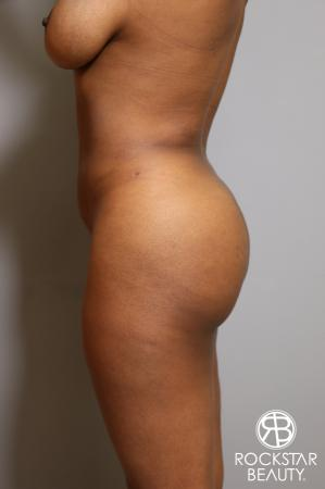 Liposuction: Patient 18 - After Image 4