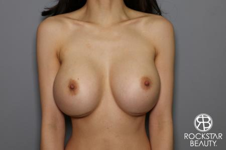 Breast Implant Exchange: Patient 8 - Before and After Image 5