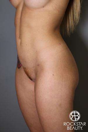 Brazilian Butt Lift: Patient 16 - After Image 3
